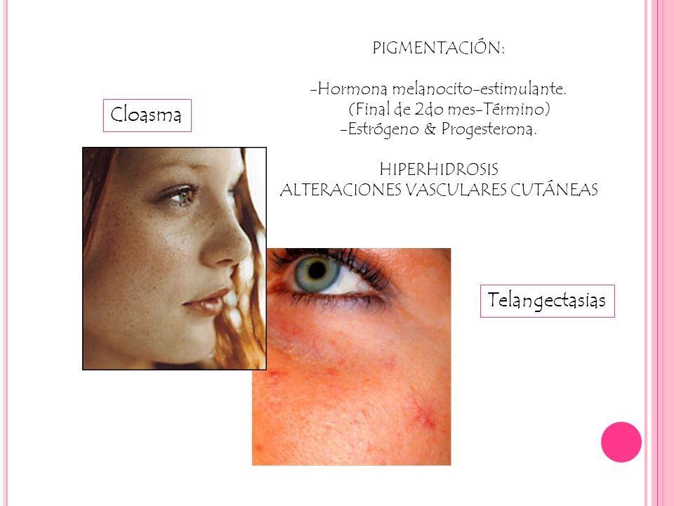 Cloasma PIGMENTACIÓN: -Hormona melanocito-estimulante. (Final de 2do mes-Término) -Estrógeno & Progesterona. HIPERHIDROSIS ALTERACIONES VASCULARES CUT