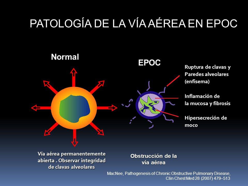 PATOLOGÍA DE LA VÍA AÉREA EN EPOC Normal EPOC Ruptura de clavas y Paredes alveolares (enfisema) Inflamación de la mucosa y fibrosis Hipersecreción de
