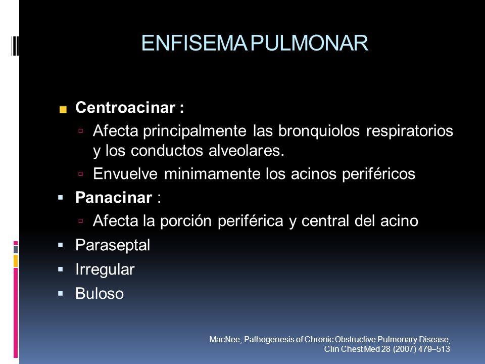 ENFISEMA PULMONAR Centroacinar : Afecta principalmente las bronquiolos respiratorios y los conductos alveolares. Envuelve minimamente los acinos perif