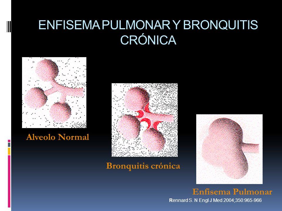 ENFISEMA PULMONAR Y BRONQUITIS CRÓNICA Alveolo Normal Bronquitis crónica Enfisema Pulmonar Rennard S. N Engl J Med 2004;350:965-966