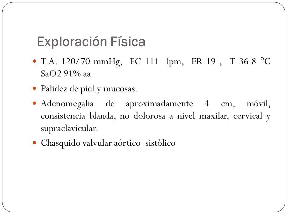 Exploración Física T.A. 120/70 mmHg, FC 111 lpm, FR 19, T 36.8 °C SaO2 91% aa Palidez de piel y mucosas. Adenomegalia de aproximadamente 4 cm, móvil,