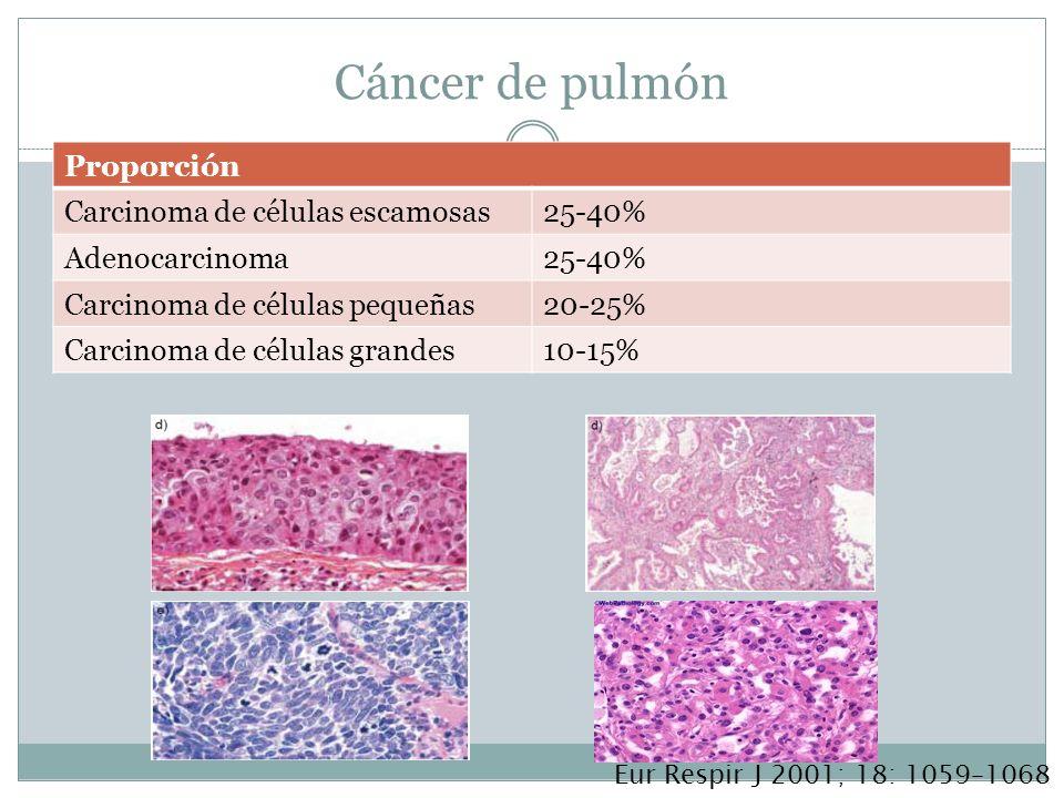 Cáncer de pulmón Proporción Carcinoma de células escamosas25-40% Adenocarcinoma25-40% Carcinoma de células pequeñas20-25% Carcinoma de células grandes