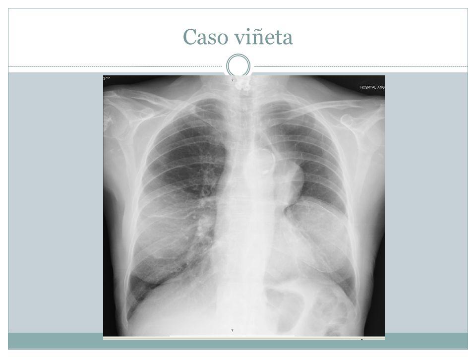 Cáncer de pulmón Proporción Carcinoma de células escamosas25-40% Adenocarcinoma25-40% Carcinoma de células pequeñas20-25% Carcinoma de células grandes10-15% Eur Respir J 2001; 18: 1059–1068