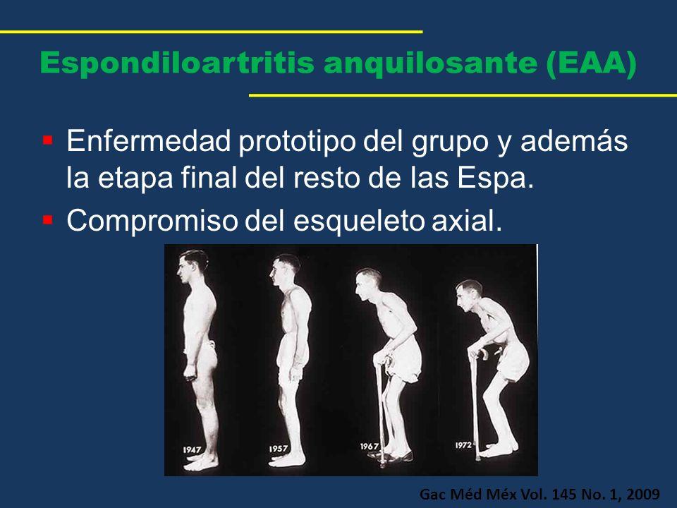 Espondiloartritis anquilosante (EAA) Enfermedad prototipo del grupo y además la etapa final del resto de las Espa. Compromiso del esqueleto axial. Gac