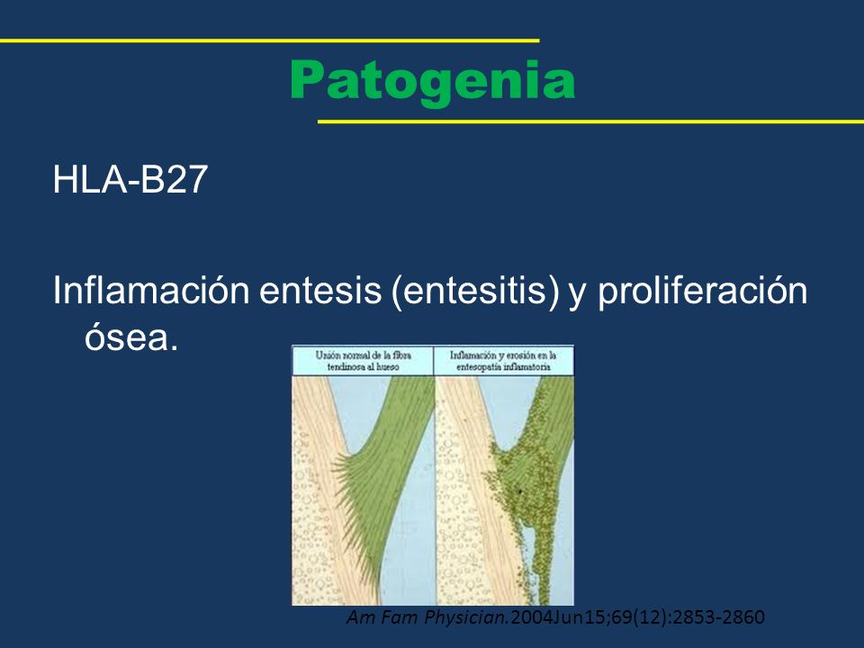 Patogenia HLA-B27 Inflamación entesis (entesitis) y proliferación ósea. Am Fam Physician.2004Jun15;69(12):2853-2860