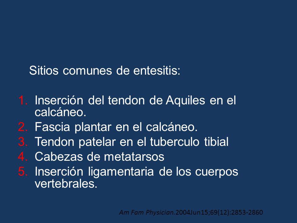 Sitios comunes de entesitis: 1.Inserción del tendon de Aquiles en el calcáneo. 2.Fascia plantar en el calcáneo. 3.Tendon patelar en el tuberculo tibia