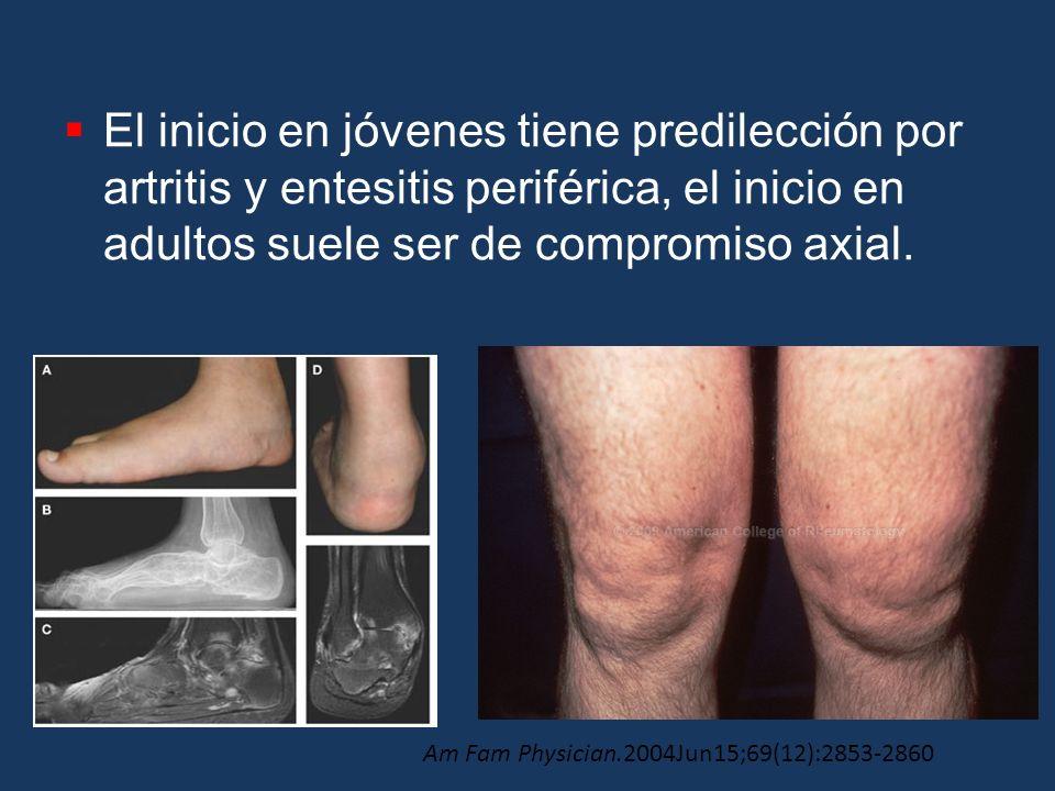 El inicio en jóvenes tiene predilección por artritis y entesitis periférica, el inicio en adultos suele ser de compromiso axial. Am Fam Physician.2004