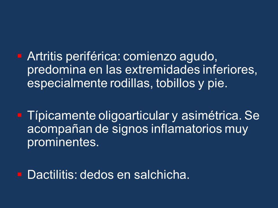 Artritis periférica: comienzo agudo, predomina en las extremidades inferiores, especialmente rodillas, tobillos y pie. Típicamente oligoarticular y as