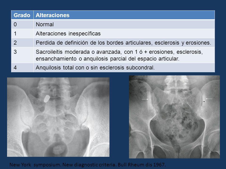 GradoAlteraciones 0Normal 1Alteraciones inespecíficas 2Perdida de definición de los bordes articulares, esclerosis y erosiones. 3Sacroileitis moderada