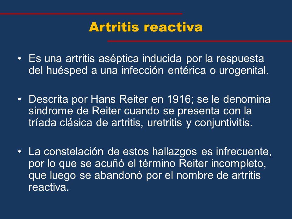 Es una artritis aséptica inducida por la respuesta del huésped a una infección entérica o urogenital. Descrita por Hans Reiter en 1916; se le denomina