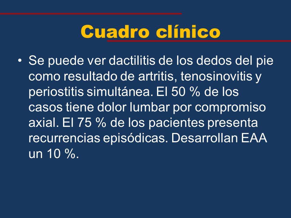 Se puede ver dactilitis de los dedos del pie como resultado de artritis, tenosinovitis y periostitis simultánea. El 50 % de los casos tiene dolor lumb