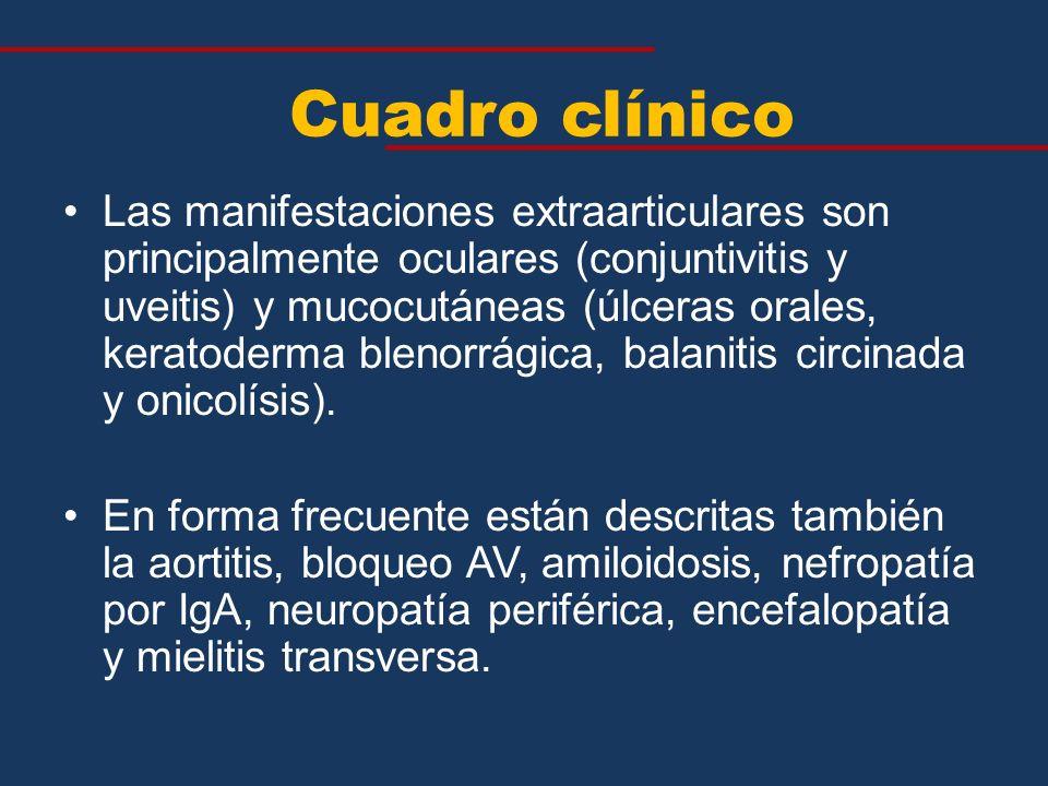 Las manifestaciones extraarticulares son principalmente oculares (conjuntivitis y uveitis) y mucocutáneas (úlceras orales, keratoderma blenorrágica, b