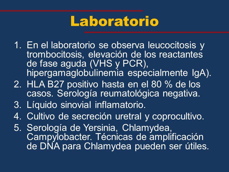 Laboratorio 1.En el laboratorio se observa leucocitosis y trombocitosis, elevación de los reactantes de fase aguda (VHS y PCR), hipergamaglobulinemia