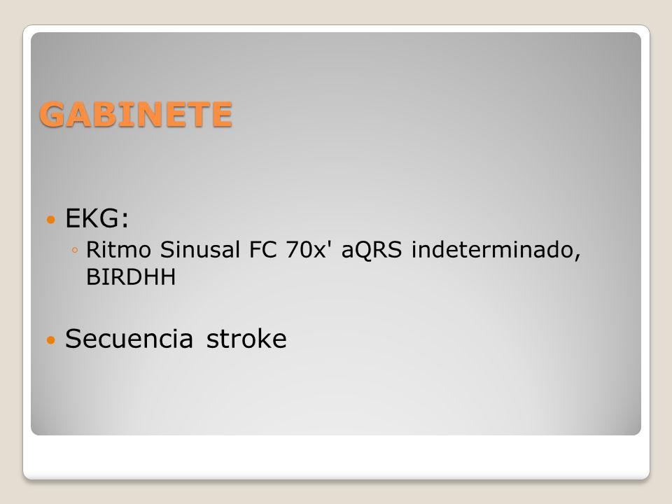 GABINETE EKG: Ritmo Sinusal FC 70x' aQRS indeterminado, BIRDHH Secuencia stroke