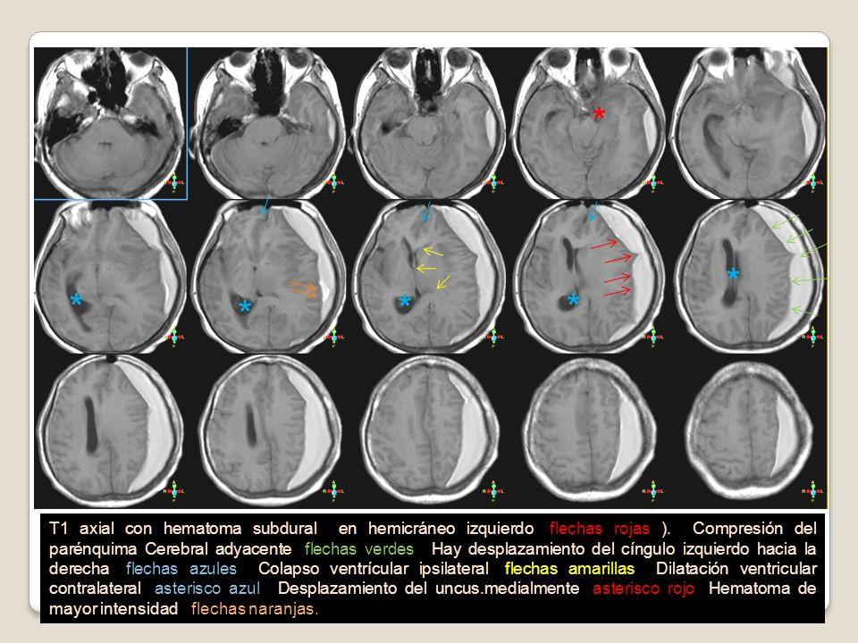 T1 axial con hematoma subdural en hemicráneo izquierdo (flechas rojas ). Compresión del parénquima Cerebral adyacente (flechas verdes). Hay desplazami
