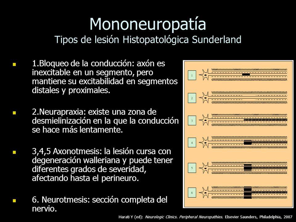 Mononeuropatía Tipos de lesión Histopatológica Sunderland 1.Bloqueo de la conducción: axón es inexcitable en un segmento, pero mantiene su excitabilid