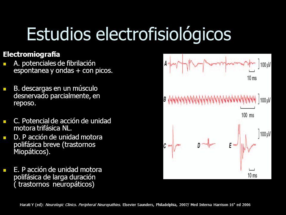 Estudios electrofisiológicos Electromiografía A. potenciales de fibrilación espontanea y ondas + con picos. A. potenciales de fibrilación espontanea y