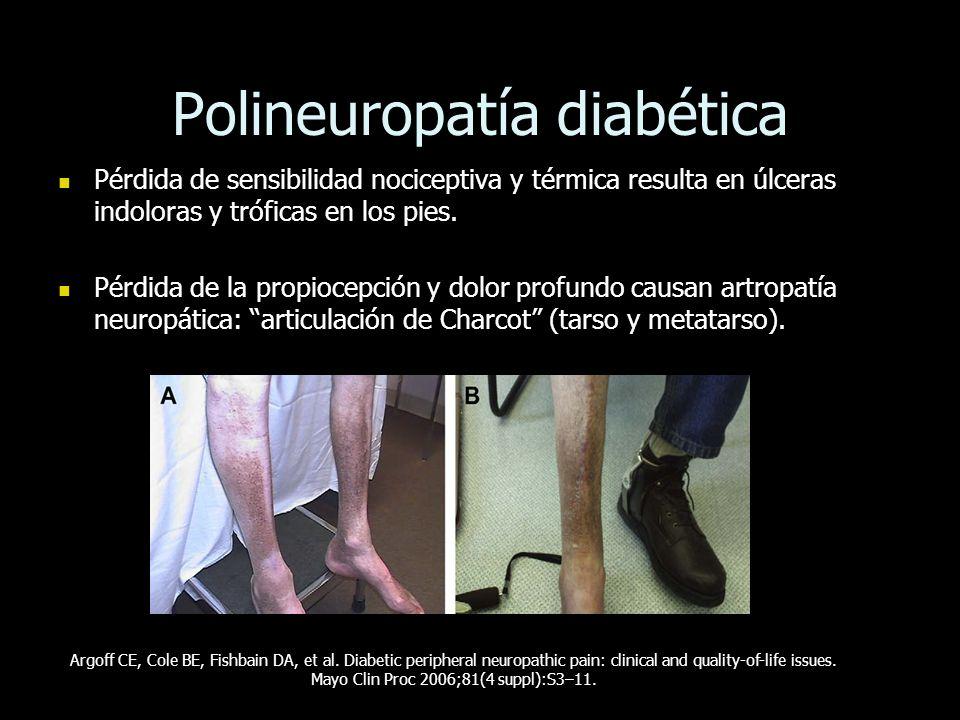 Polineuropatía diabética Pérdida de sensibilidad nociceptiva y térmica resulta en úlceras indoloras y tróficas en los pies. Pérdida de sensibilidad no