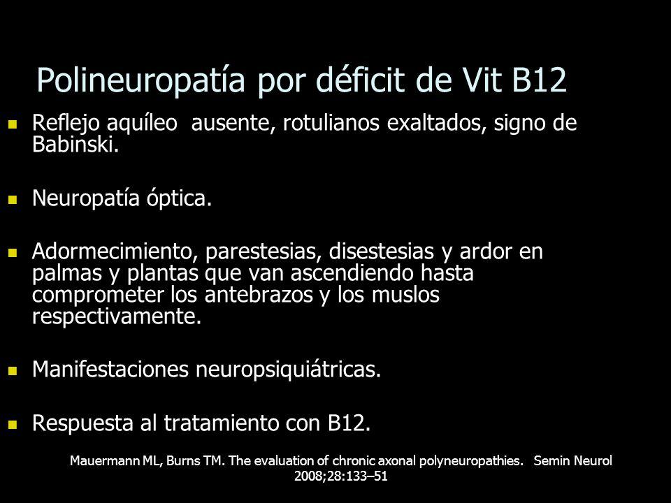 Polineuropatía por déficit de Vit B12 Reflejo aquíleo ausente, rotulianos exaltados, signo de Babinski. Reflejo aquíleo ausente, rotulianos exaltados,