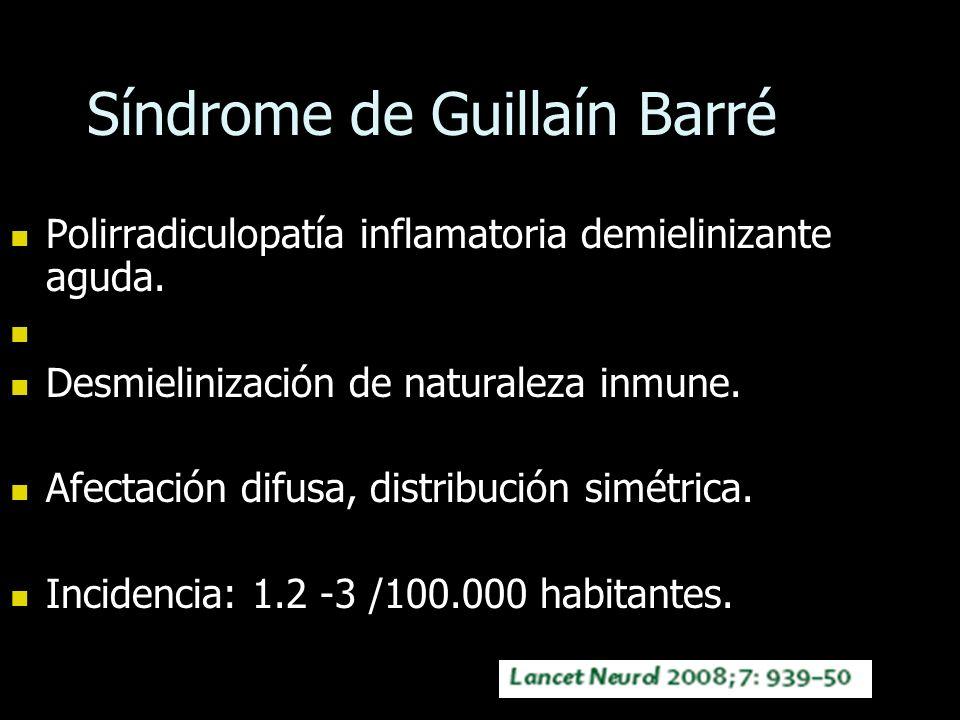 Síndrome de Guillaín Barré Polirradiculopatía inflamatoria demielinizante aguda. Polirradiculopatía inflamatoria demielinizante aguda. Desmielinizació