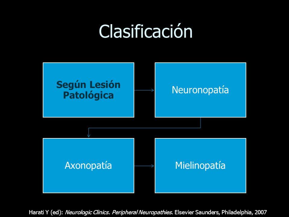 Etiología Metabólicas: Diabetes, uremia, hipotiroidismo, acromegalia, déficit de Vit B12, alcoholismo con deficiencia de tiamina Porfiria, intoxicación con piridoxina, polineuropatía del paciente crítico Infecciosas SIDA, lepra, difteria, enfermedad de Lyme, asociada a tétanos Por Vasculitis Asociadas a enfermedades del colágeno (LES, PAN, AR), sarcoidosis Autoinmunes S de Guillain-Barré, S de Miller-Fisher, polineuropatía crónica inflamatoria desmielinizante (CIDP).