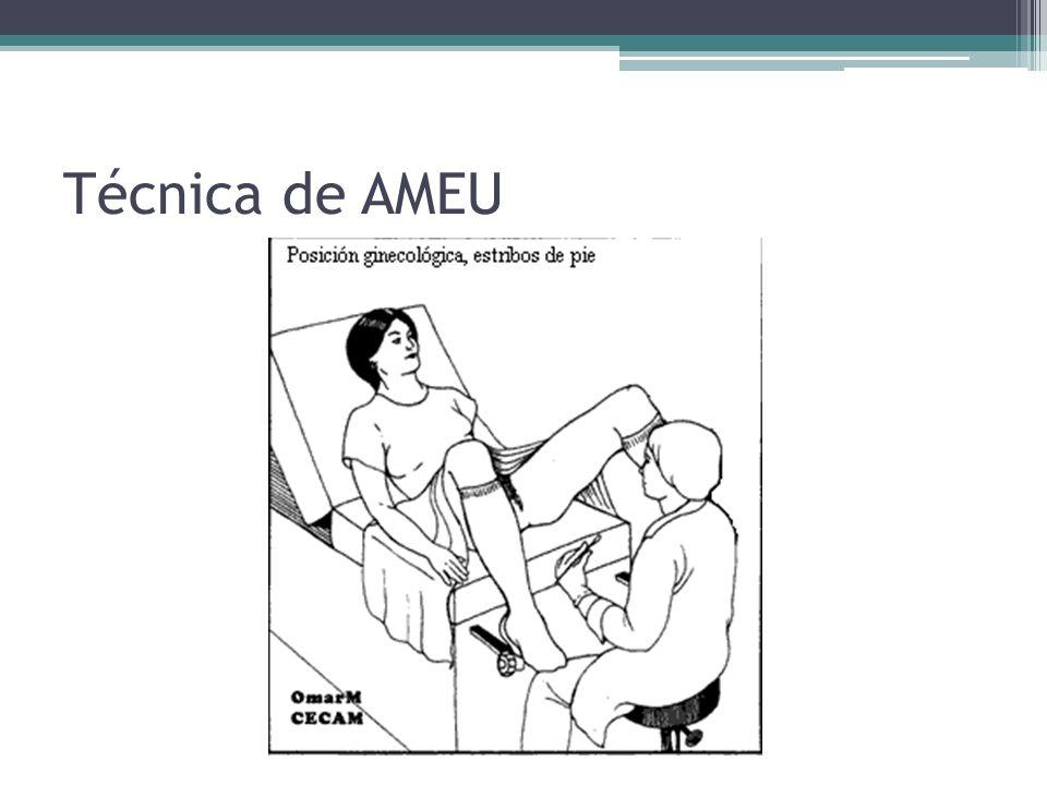 Técnica de AMEU