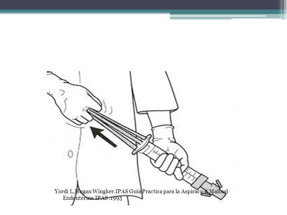 Yordi L,Hogan Wingker.IPAS Guía Practica para la Aspiración Manual Endouterina IPAS.1995