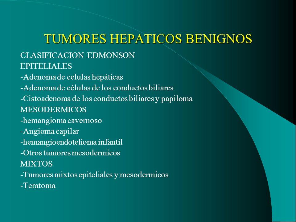 TUMORES HEPATICOS BENIGNOS CLASIFICACION EDMONSON EPITELIALES -Adenoma de celulas hepáticas -Adenoma de células de los conductos biliares -Cistoadenom