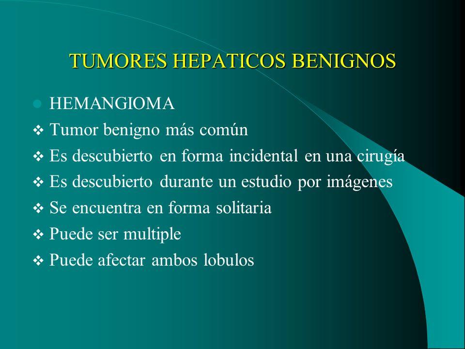 TUMORES HEPATICOS BENIGNOS HEMANGIOMA Tumor benigno más común Es descubierto en forma incidental en una cirugía Es descubierto durante un estudio por