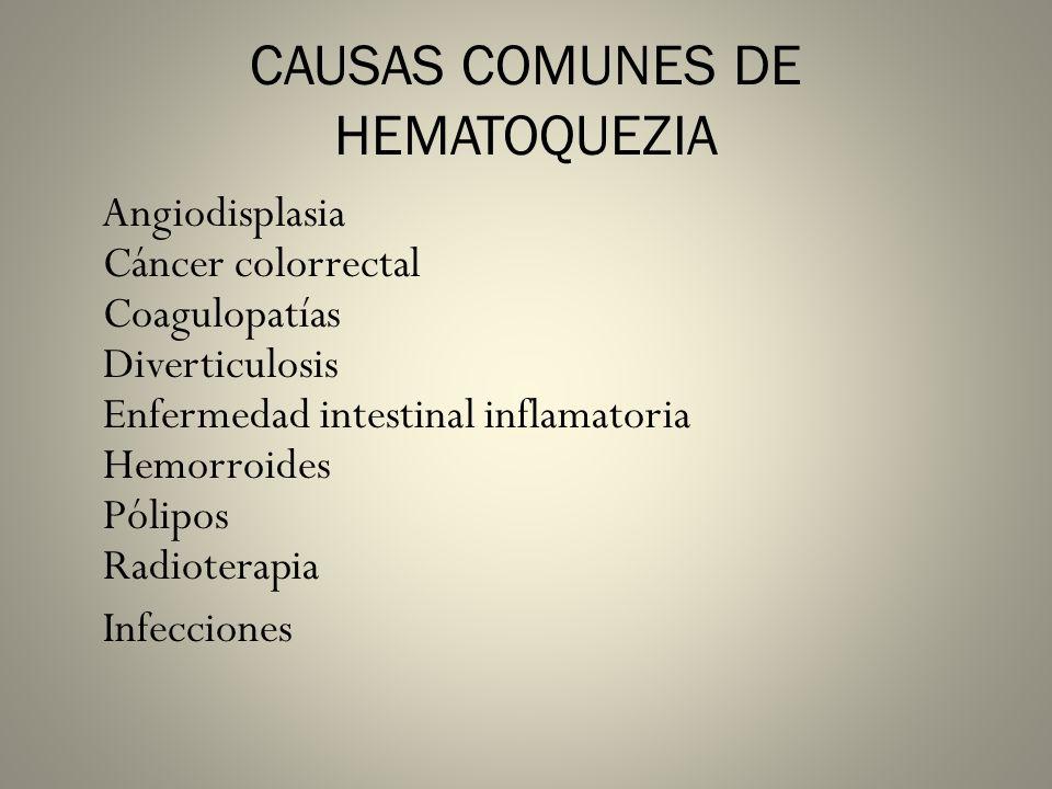 CAUSAS COMUNES DE HEMATOQUEZIA Angiodisplasia Cáncer colorrectal Coagulopatías Diverticulosis Enfermedad intestinal inflamatoria Hemorroides Pólipos R