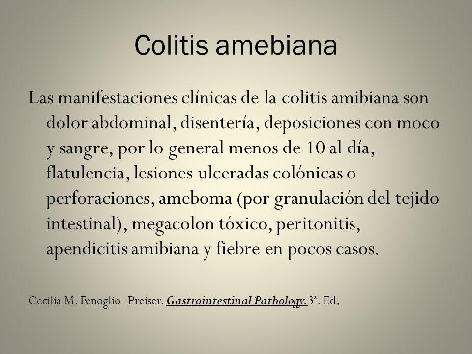 Colitis amebiana Las manifestaciones clínicas de la colitis amibiana son dolor abdominal, disentería, deposiciones con moco y sangre, por lo general m