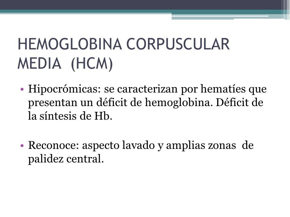 AnemiaReticulocitosisHemorragia Hemólisis activa - Aumento BI y DHL Reticulopenia Eritropoyesis normal - VCM (importante)