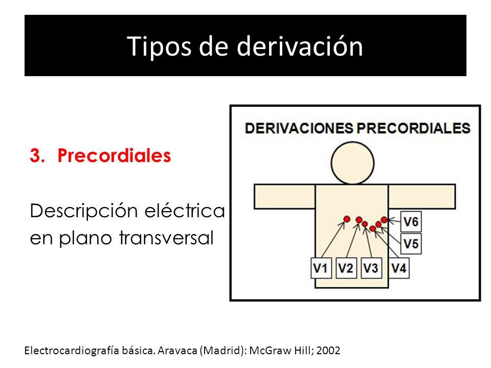 Tipos de derivación 1.Bipolares 2.Monopolares 3. Precordiales Descripción eléctrica en plano transversal Electrocardiografía básica. Aravaca (Madrid):