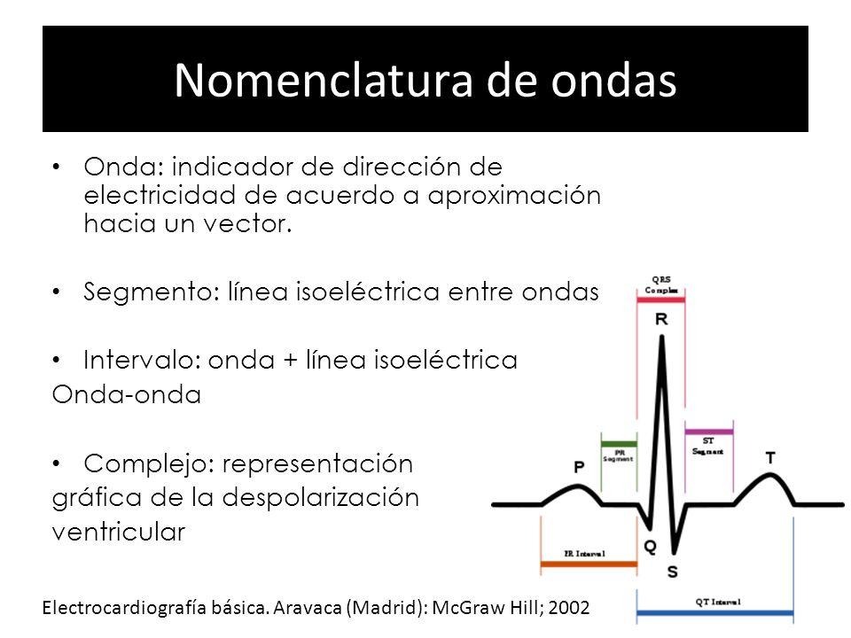 Nomenclatura de ondas Onda: indicador de dirección de electricidad de acuerdo a aproximación hacia un vector. Segmento: línea isoeléctrica entre ondas