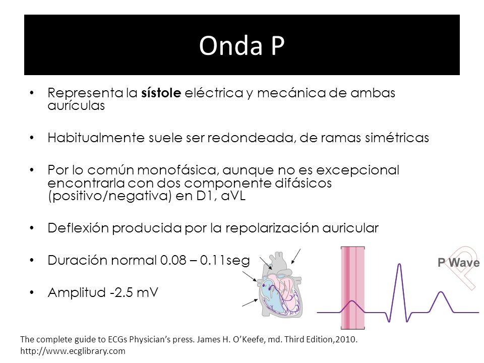 Onda P Representa la sístole eléctrica y mecánica de ambas aurículas Habitualmente suele ser redondeada, de ramas simétricas Por lo común monofásica,