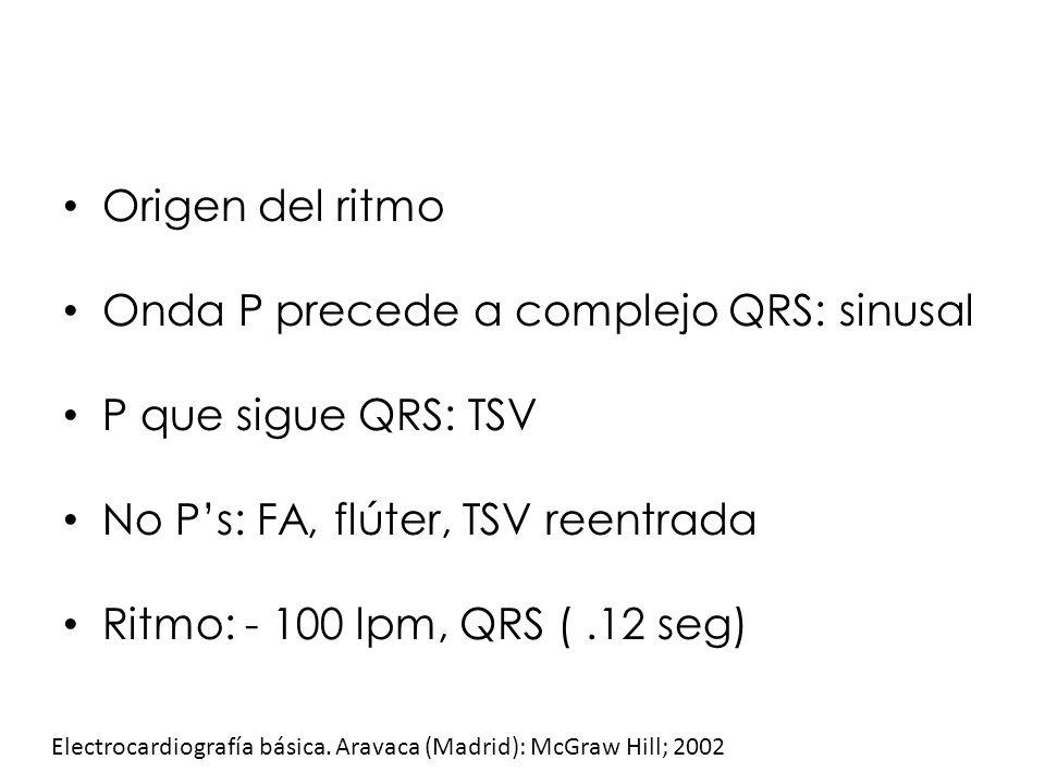 Origen del ritmo Onda P precede a complejo QRS: sinusal P que sigue QRS: TSV No Ps: FA, flúter, TSV reentrada Ritmo: - 100 lpm, QRS (.12 seg) Electroc