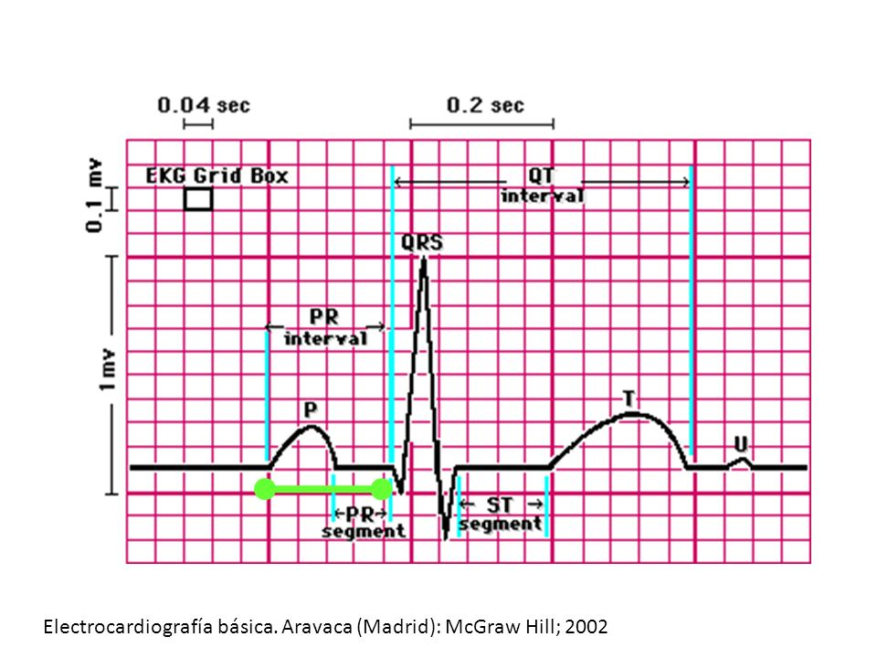 Segmento PR Usualmente isoeléctrico Puede tender a la positividad Positividad normal: 0.5mm Depresión: 0.8 mm The complete guide to ECGs Physicians press.