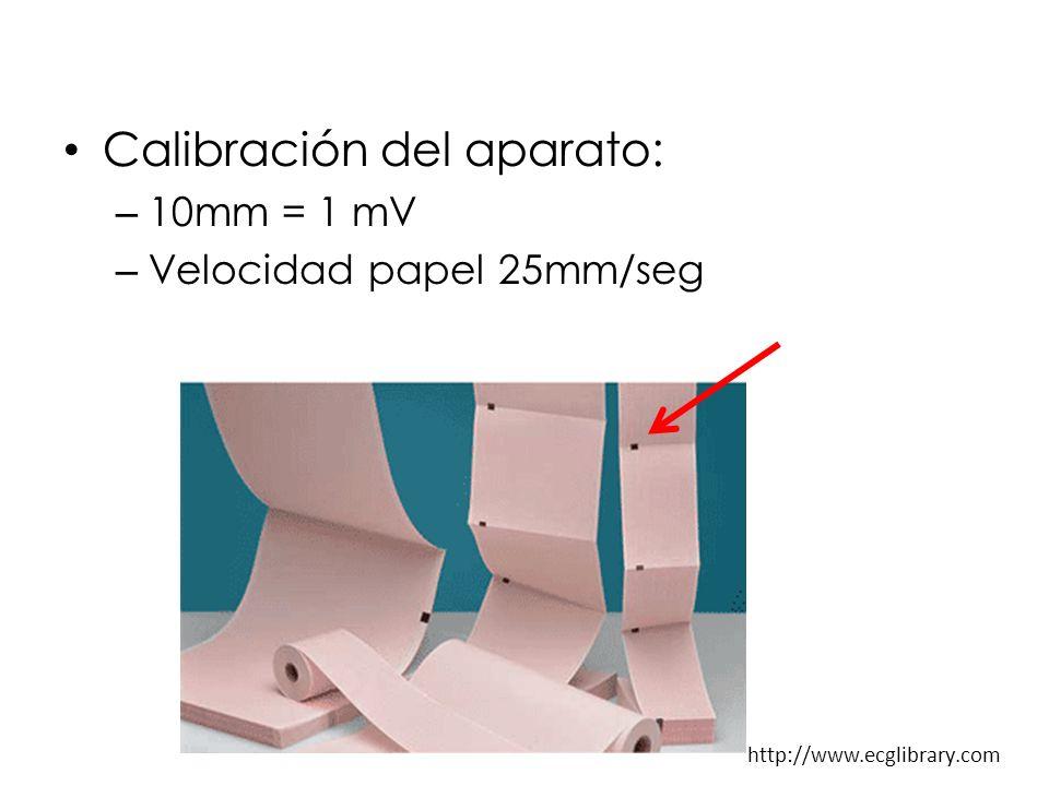 Calibración del aparato: – 10mm = 1 mV – Velocidad papel 25mm/seg http://www.ecglibrary.com