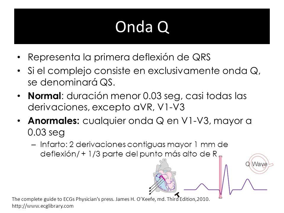 Onda Q Representa la primera deflexión de QRS Si el complejo consiste en exclusivamente onda Q, se denominará QS. Normal : duración menor 0.03 seg, ca