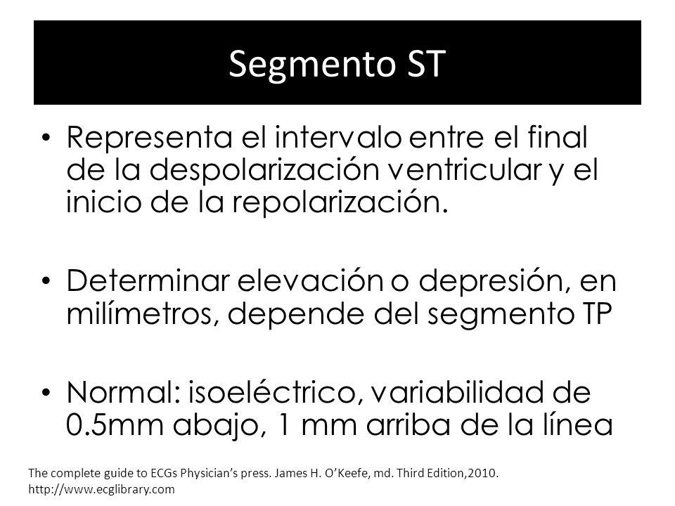 Segmento ST Representa el intervalo entre el final de la despolarización ventricular y el inicio de la repolarización. Determinar elevación o depresió