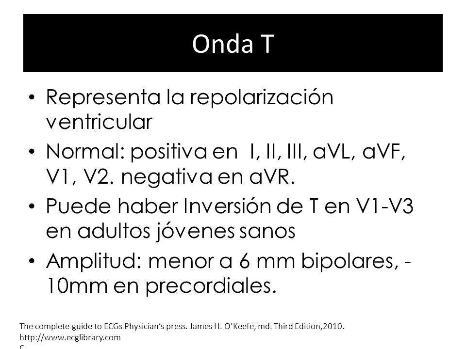 Onda T Representa la repolarización ventricular Normal: positiva en I, II, III, aVL, aVF, V1, V2. negativa en aVR. Puede haber Inversión de T en V1-V3