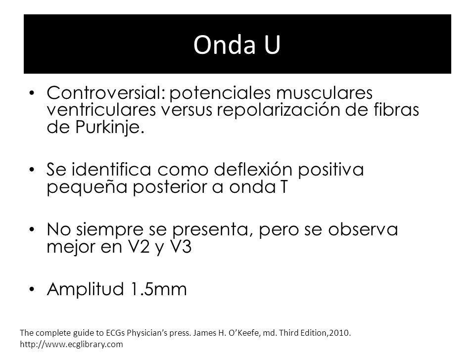 Onda U Controversial: potenciales musculares ventriculares versus repolarización de fibras de Purkinje. Se identifica como deflexión positiva pequeña