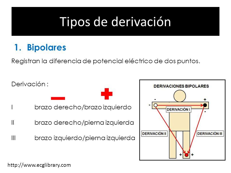 Tipos de derivación 1.Bipolares 2.Monopolares 3.Precordiales Registran la diferencia de potencial eléctrico de dos puntos. Derivación : Ibrazo derecho