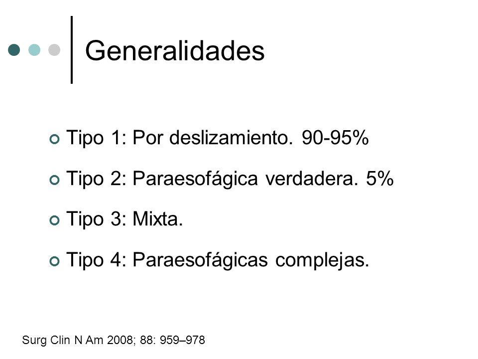 Generalidades Tipo 1: Por deslizamiento. 90-95% Tipo 2: Paraesofágica verdadera. 5% Tipo 3: Mixta. Tipo 4: Paraesofágicas complejas. Surg Clin N Am 20