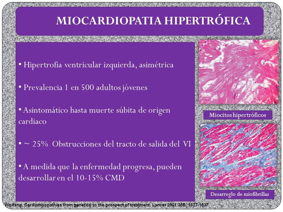 Cuando existe necesidad de otros inotrópicos, colocación de un dispositivo Balones Implantes desfibriladores de cardioversión: FEVI < 30% y síntomas de falla cardiaca Resincronizadores cardiacos Elimina el retraso en la activación de la pared libre del VI Mejora el tiempo de llenado del VI Disminuye la insuficiencia mitral y reduce la discinesia septal Recupera la coordinación y relajación de las camaras cardiacas TRATAMIENTO John Lynn Jeff eries, Jeff rey A Towbin.