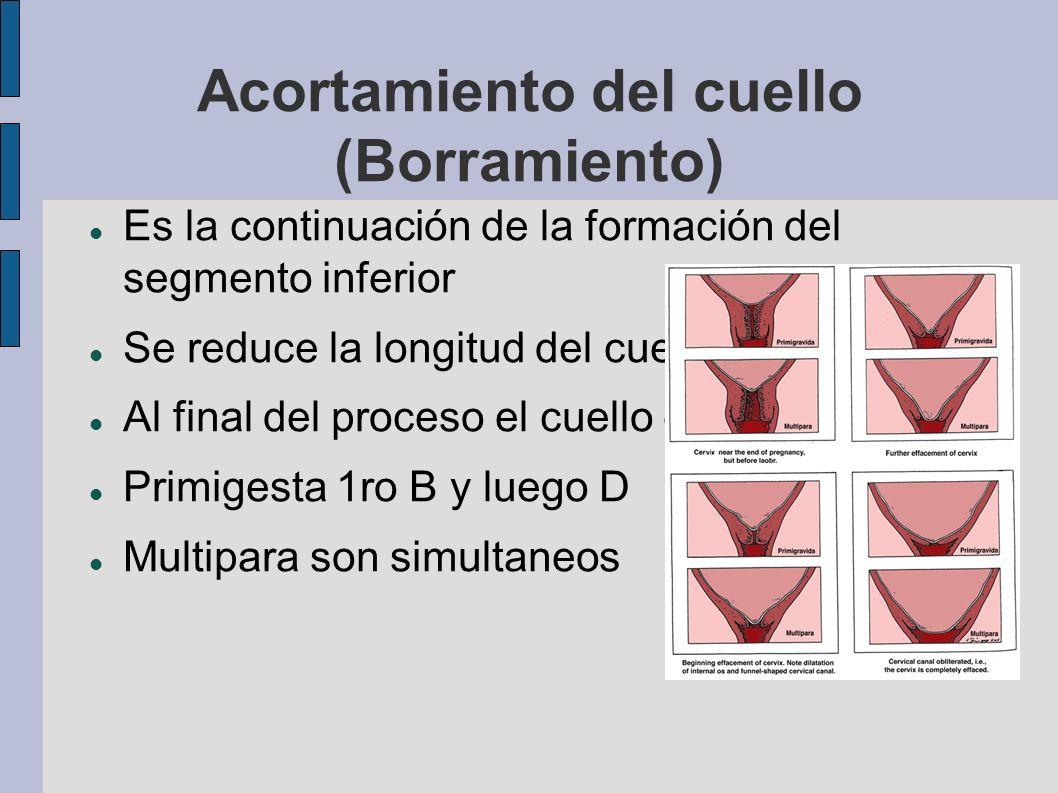 Acortamiento del cuello (Borramiento) Es la continuación de la formación del segmento inferior Se reduce la longitud del cuello Al final del proceso e
