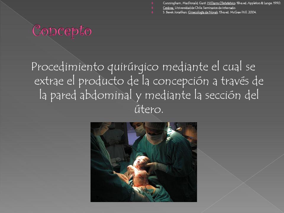 Procedimiento quirúrgico mediante el cual se extrae el producto de la concepción a través de la pared abdominal y mediante la sección del útero. Cunni