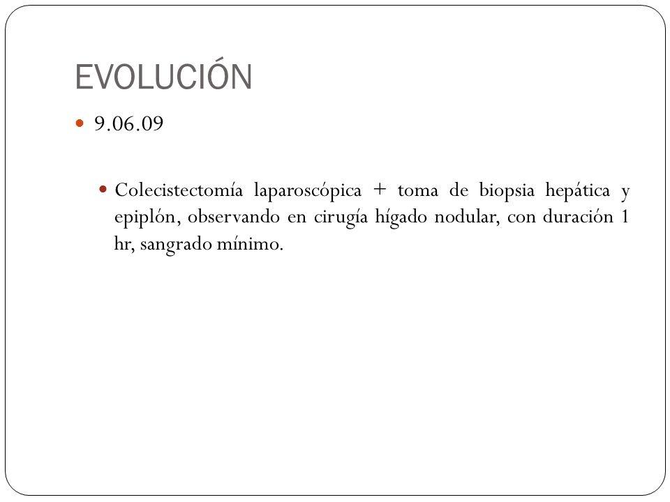EVOLUCIÓN 9.06.09 Colecistectomía laparoscópica + toma de biopsia hepática y epiplón, observando en cirugía hígado nodular, con duración 1 hr, sangrad