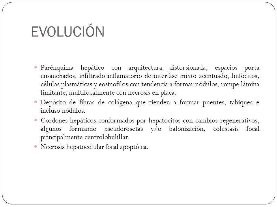EVOLUCIÓN Parénquima hepático con arquitectura distorsionada, espacios porta ensanchados, infiltrado inflamatorio de interfase mixto acentuado, linfoc