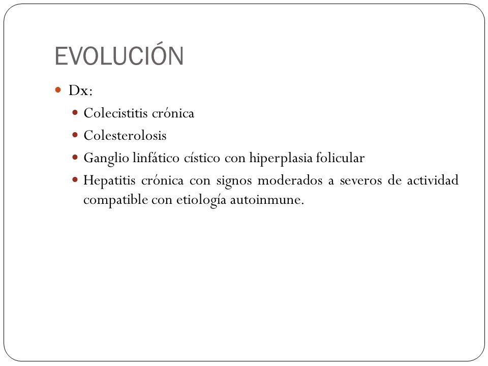 EVOLUCIÓN Dx: Colecistitis crónica Colesterolosis Ganglio linfático cístico con hiperplasia folicular Hepatitis crónica con signos moderados a severos